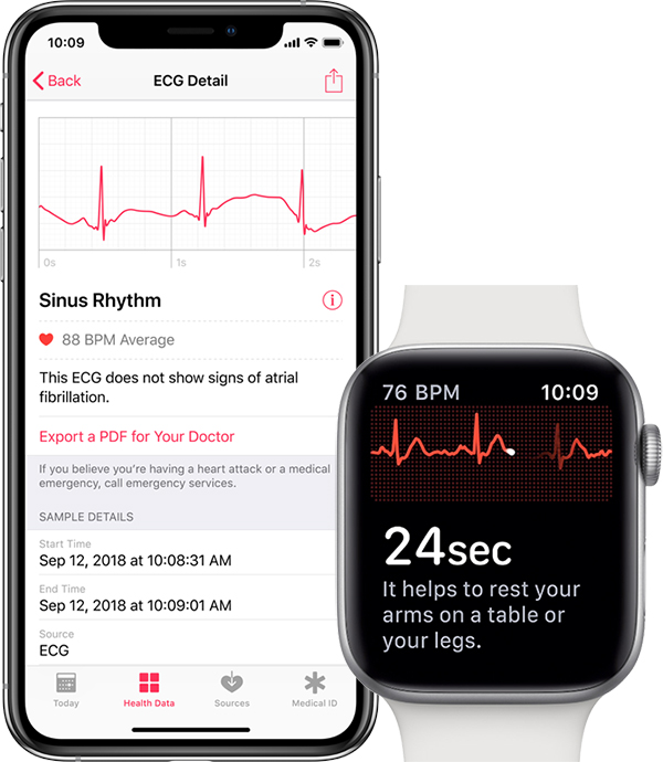 EKG v Apple Watch Series 4